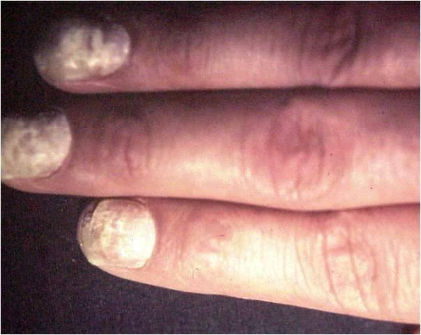 Kvasinkové onemocnění pod nehty